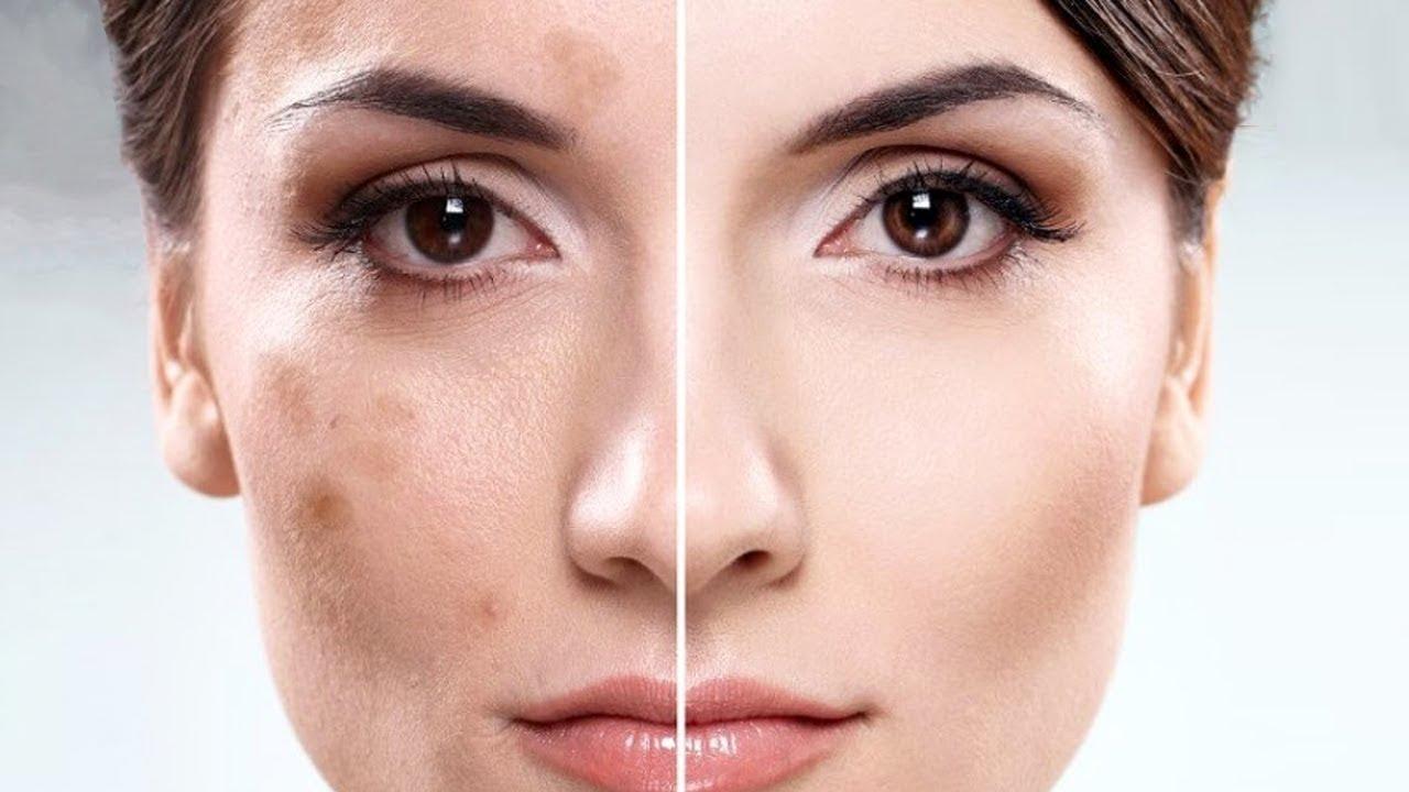 Пигментация на кожата